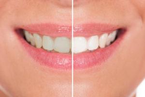 Tannbleking før og etter