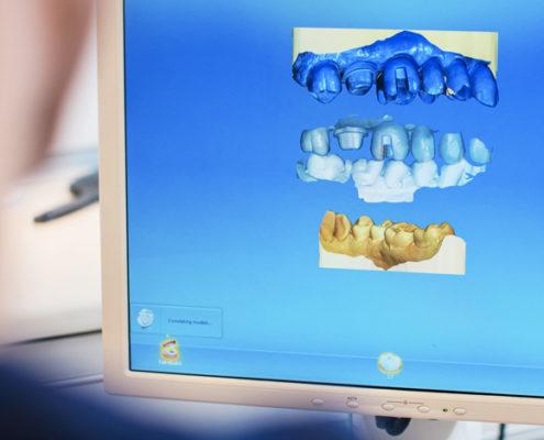 tannlege designer tannkrone med cerec