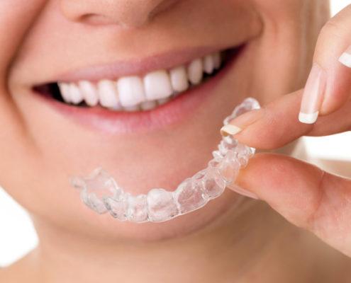 Invisalign usynlig tannregulering
