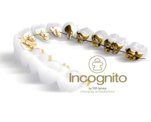 skjult tannregulering incognito