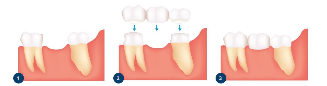 Rehabilitering av tann med tannbro
