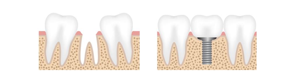 implantat illustrasjon