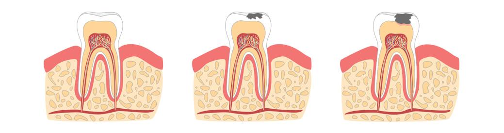 Illustrasjon viser hull i tennene