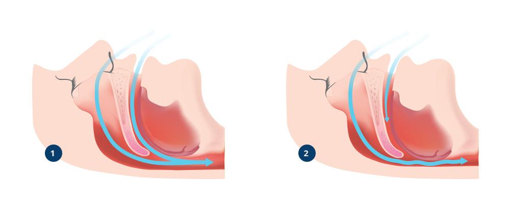 Illustrasjon viser snorking